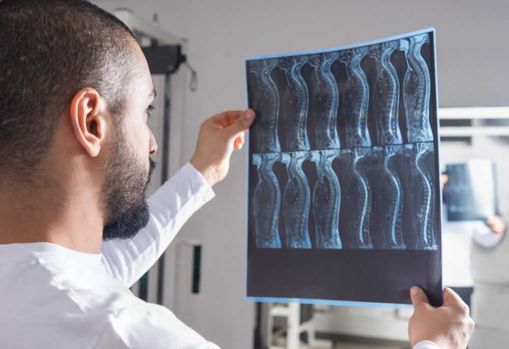 when should you call a lawyer for a spinal cord injury