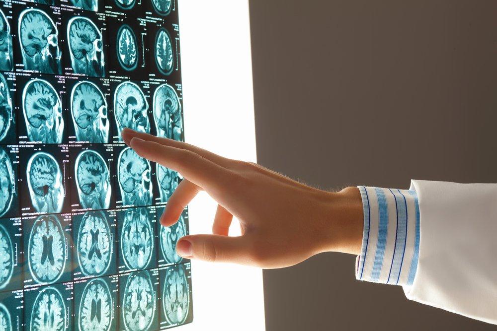 brain injury lawyers alberta